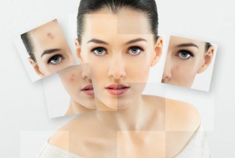 Skin Diagnosis